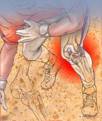 покраснение суставов на руках