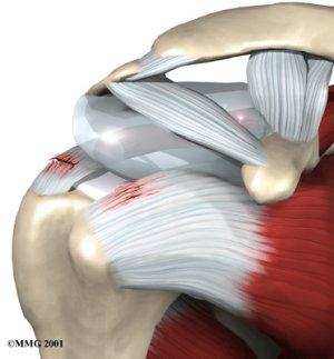 артроскопия плечевого сустава отзывы больница 83