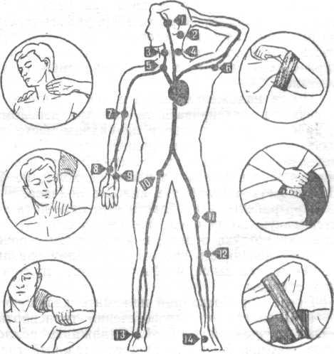 При ранении головы прижимают: